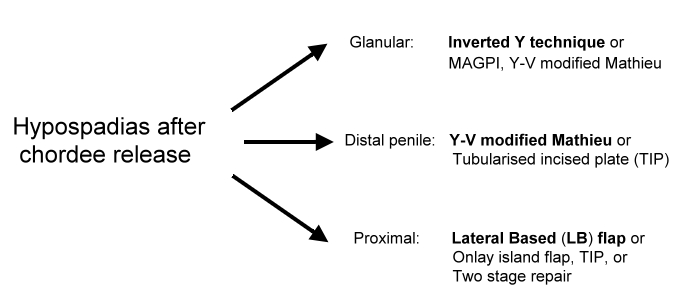 distal penile hypospadias repair